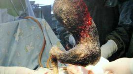 Bola de pelos de 4 kilos es extraída del estómago de una joven