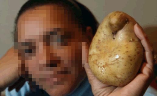 A una mujer de Colombia le creció una patata en la vagina