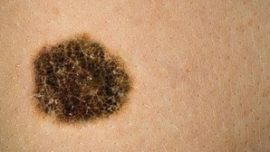 Descubren una relación entre los melanomas y la materia oscura