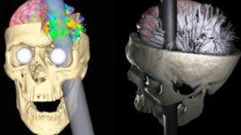 En 1848 una barra de hierro le atravesó el cráneo y sobrevivió