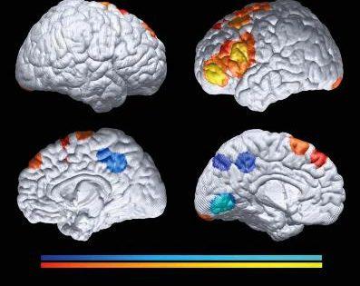 El cerebro de las personas con riesgo de Alzheimer se desarrolla de forma distinta