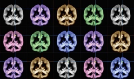 """La """"fuente"""" de la felicidad del cerebro, localizada"""