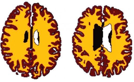 La obesidad también afecta al cerebro