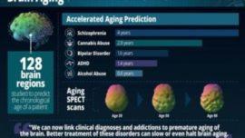 Cosas que envejecen prematuramente tu cerebro