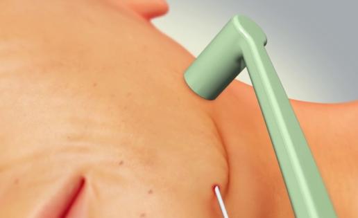 Nuevas (y sorprendentes) formas de radiofrecuencia para flacidez, arrugas y sudor