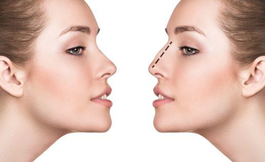 ¿Sabéis que se puede remodelar la nariz solo con ácido hialurónico?