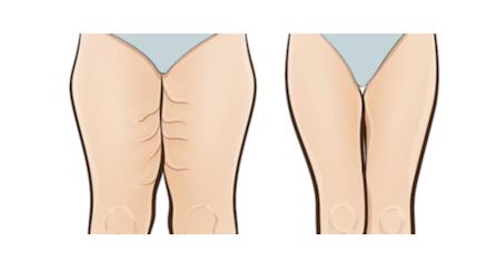 Como adelgazar las piernas internas