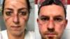¿Os irritan la piel las mascarillasprotectoras? Tenemos la solución