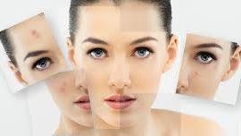¿Sabíais que el botox puede acabar con cicatrices, acné, foliculitis y rosácea?